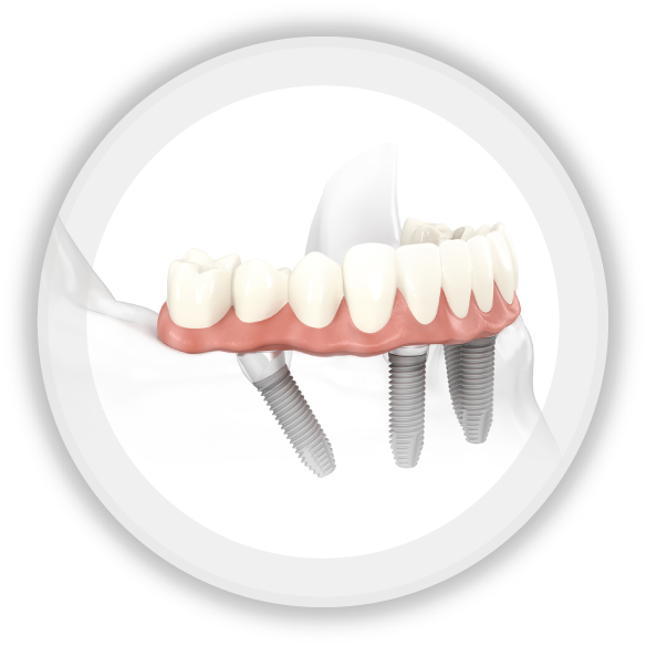 Click here to learn more about dental implants