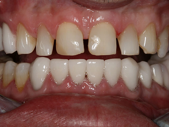 Before after treatment images at Timothy H. Kindt, DDS