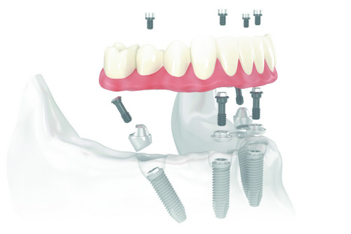 Diagram of All-on-4 Implants treatment at Timothy H. Kindt, DDS