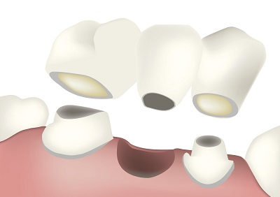 Diagram of a dental bridge from dentist office in Mesa, AZ.