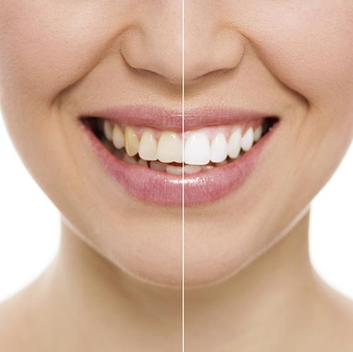 What Causes Stained Teeth?